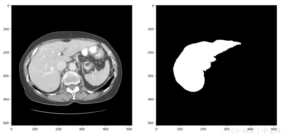 基于飞桨Res-Unet网络实现肝脏肿瘤分割任务